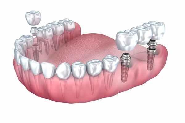 Implanty zębów - ile to kosztuje?