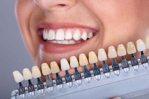 Stomatologia estetyczna – zadbaj o wygląd swojego uśmiechu!