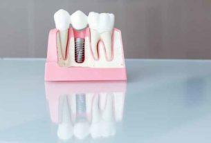 Implanty zębowe - w jaki sposób są zakładane?