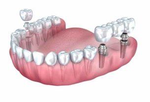 Klinika implantologiczna - miejsce dla Ciebie